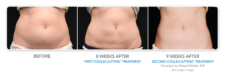 coolsculpting-before-and-after